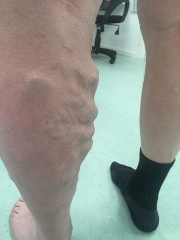 Åreknuder på ben